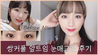 [리얼 쌍수 후기 (feat. 앞트임, 눈매교정) 쌍커…