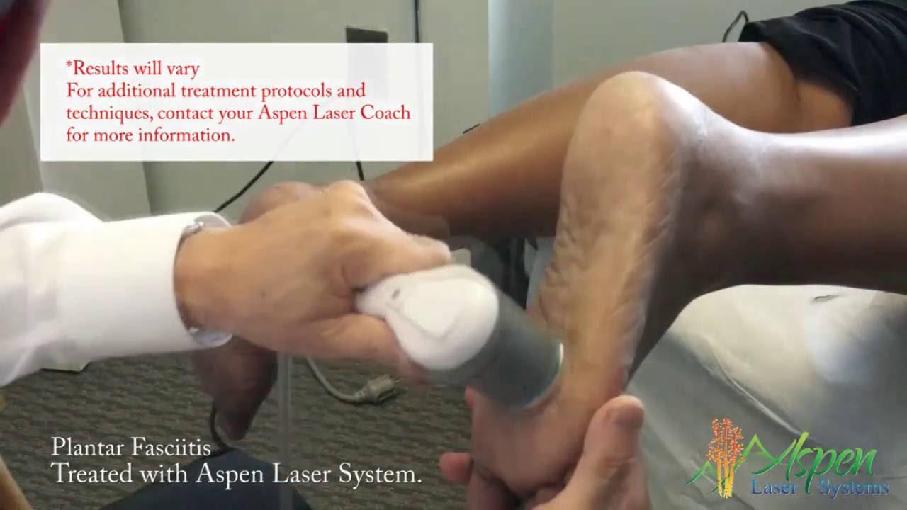Laser Treatment of Plantar Fasciitis