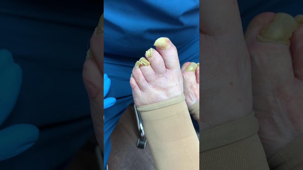 élénkpiros foltok a lábakon viszketik mi