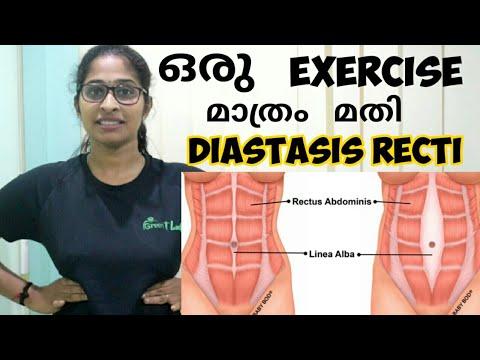 Exercise  For Diastasis Recti |  One Exercise For  Diastasis Recti