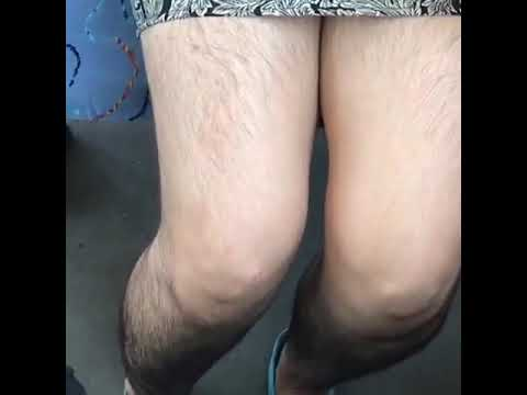 Волосатые ноги у красотки