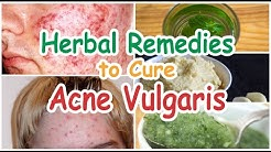hqdefault - Herbal Remedies For Acne Vulgaris