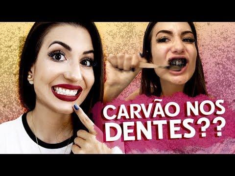 Usei Carvao Para Clarear Os Dentes Sera Que Funciona Carvvo
