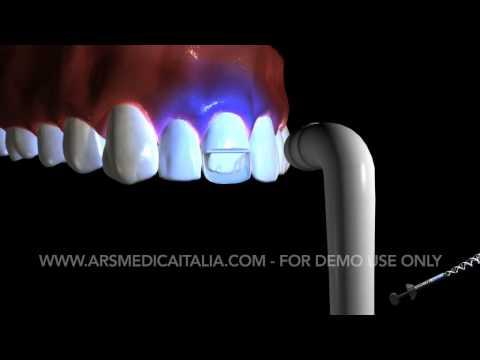 Dental - Ars Medica Italia Showreel 2009 - Part 5/5