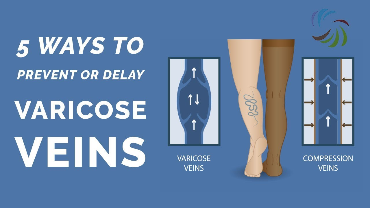 How to Prevent or Delay Varicose Veins - YouTube