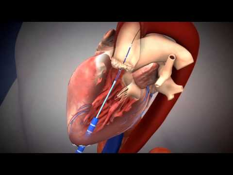 SAPIEN TAVI Deployment Using Transapical Approach