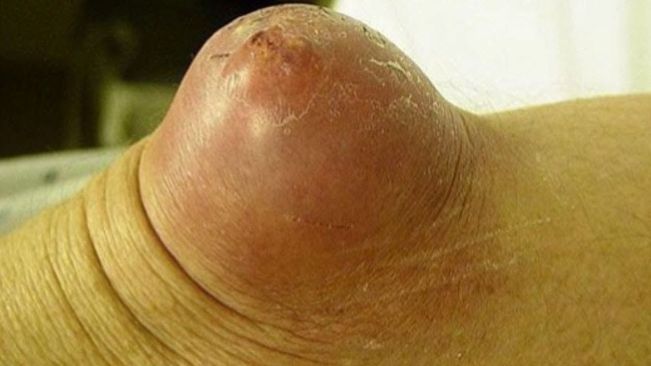 World S Largest Cyst Extraction – Wonderful Image Gallery