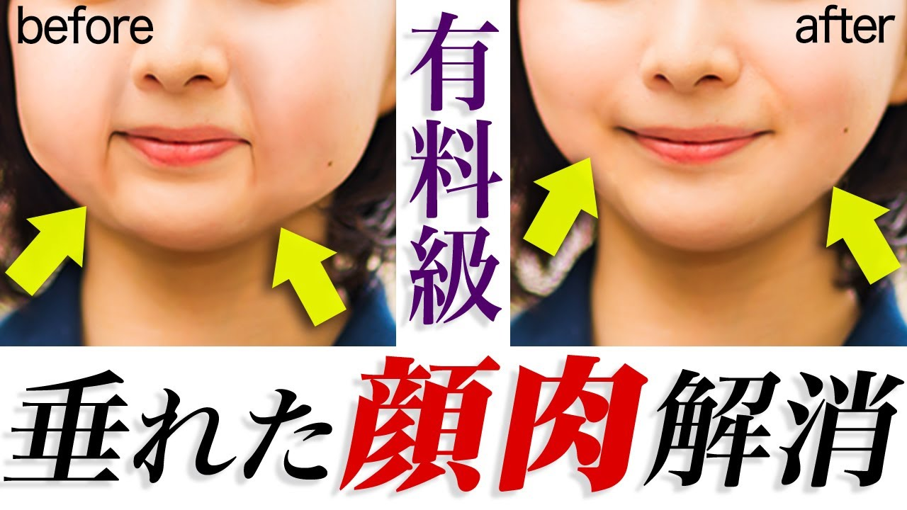 【整形級】激痛でブルドック顔卒業!顔のタルミをすべて消す方法!