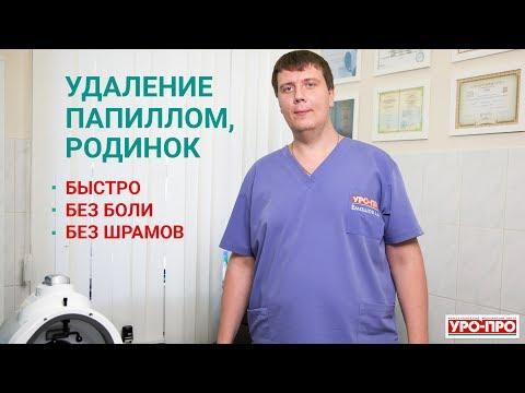 Удаление папиллом, родинок в Ростове-на-Дону | Центр дерматологии УРО-ПРО