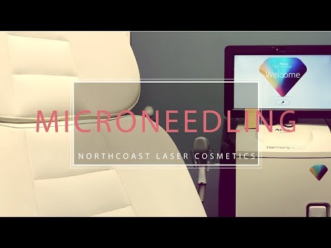 Northcoast Laser Microneedling + Radio Frequency