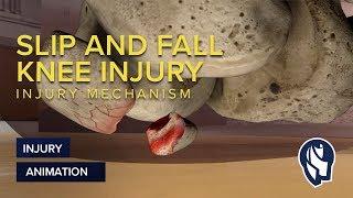 Slip and Fall Knee Injury Mechanism Animation
