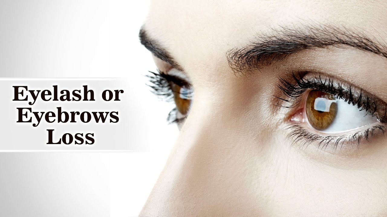 Loss Of Eyelash Or Eyebrows Youtube