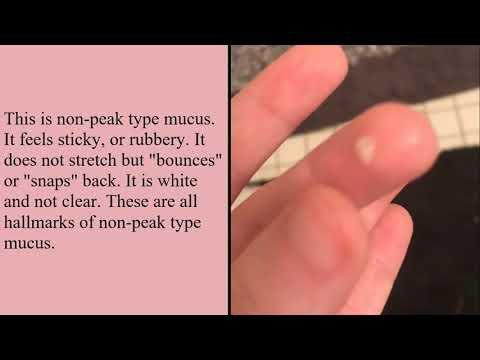 The Different Types of Cervical Mucus