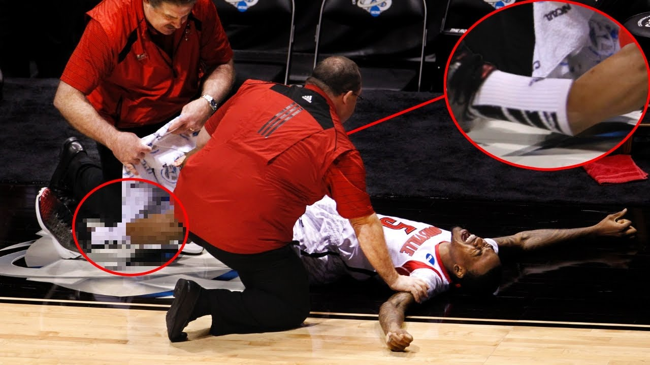 Download TOP 10 Worst Sports Injuries CAUGHT On TV