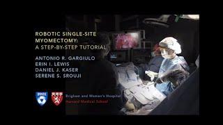Robotic Single-site Myomectomy Video - Brigham and Women's Hospital