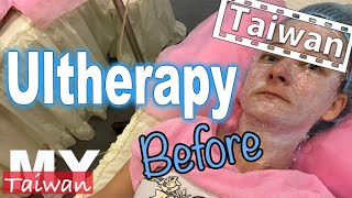 Ultherapy in Taiwan, Part 1 Before