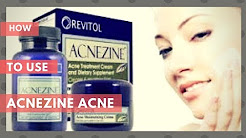 Acnezine How To Use Acnezine Acne Treatment And Benefits Youtube