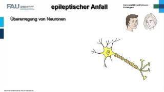 Neuropathologie ─ Epilepsie