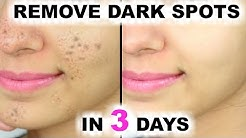 hqdefault - How To Remove Dark Spots And Pimple Marks From Face