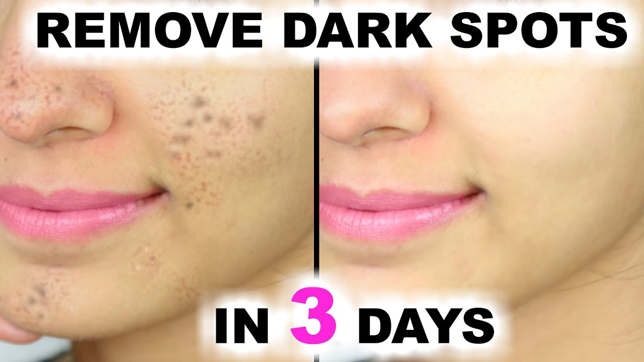 dark marks on face
