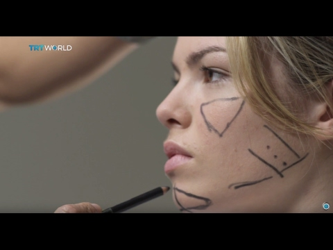 Albania Plastic Surgery: Salons offer procedures without oversight