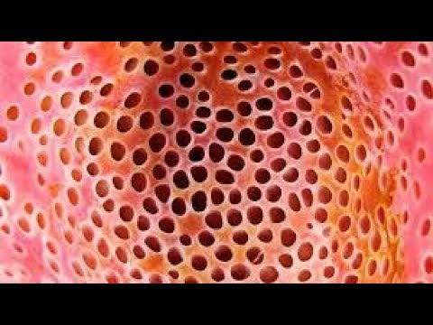 Trypophobia Test 1 Youtube