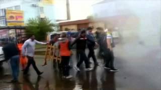 Brûlés par de l'eau très chaude dans un bus en Russie