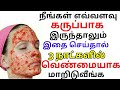 How to Get White Skin Naturally |Get Fair, Glowing, Healthy Skin Naturally with Tomato Facial