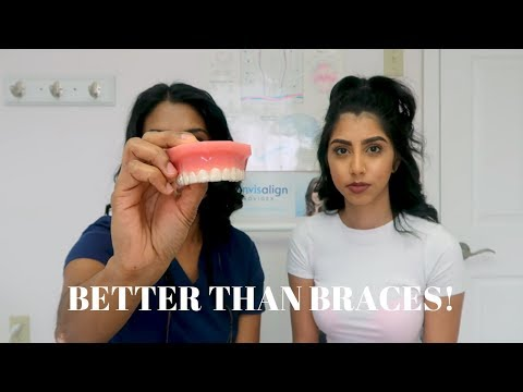 What You Need To Know About Invisalign | Ready To Glow