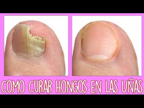 como tratar hongos en las uñas de los pies