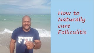 Two ways to naturally cure Folliculitis also known as Acne keloidalis