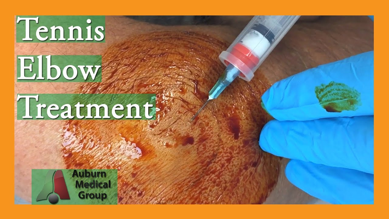 what is tennis elbow treatment