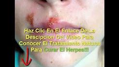 tratamiento para el herpes labial el mas efectivo