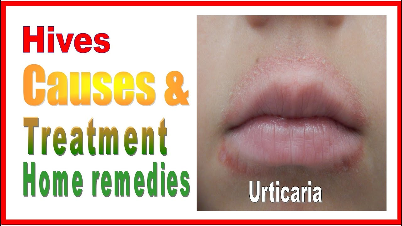 Hives Urticaria treatment home remedies DIYs & cure at home - YouTube
