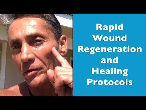 Rapid Wound Regeneration and Healing Protocols | Dr. Robert Cassar