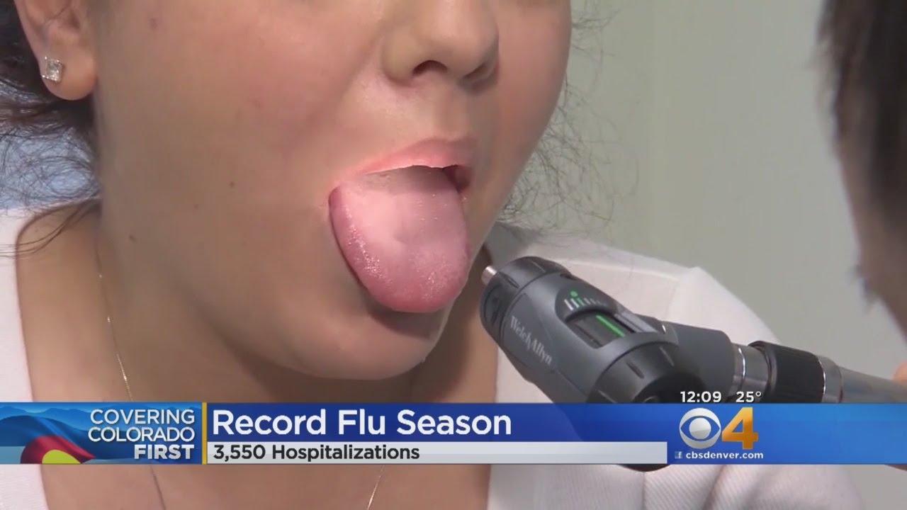 Flu Season Is A Record For Colorado