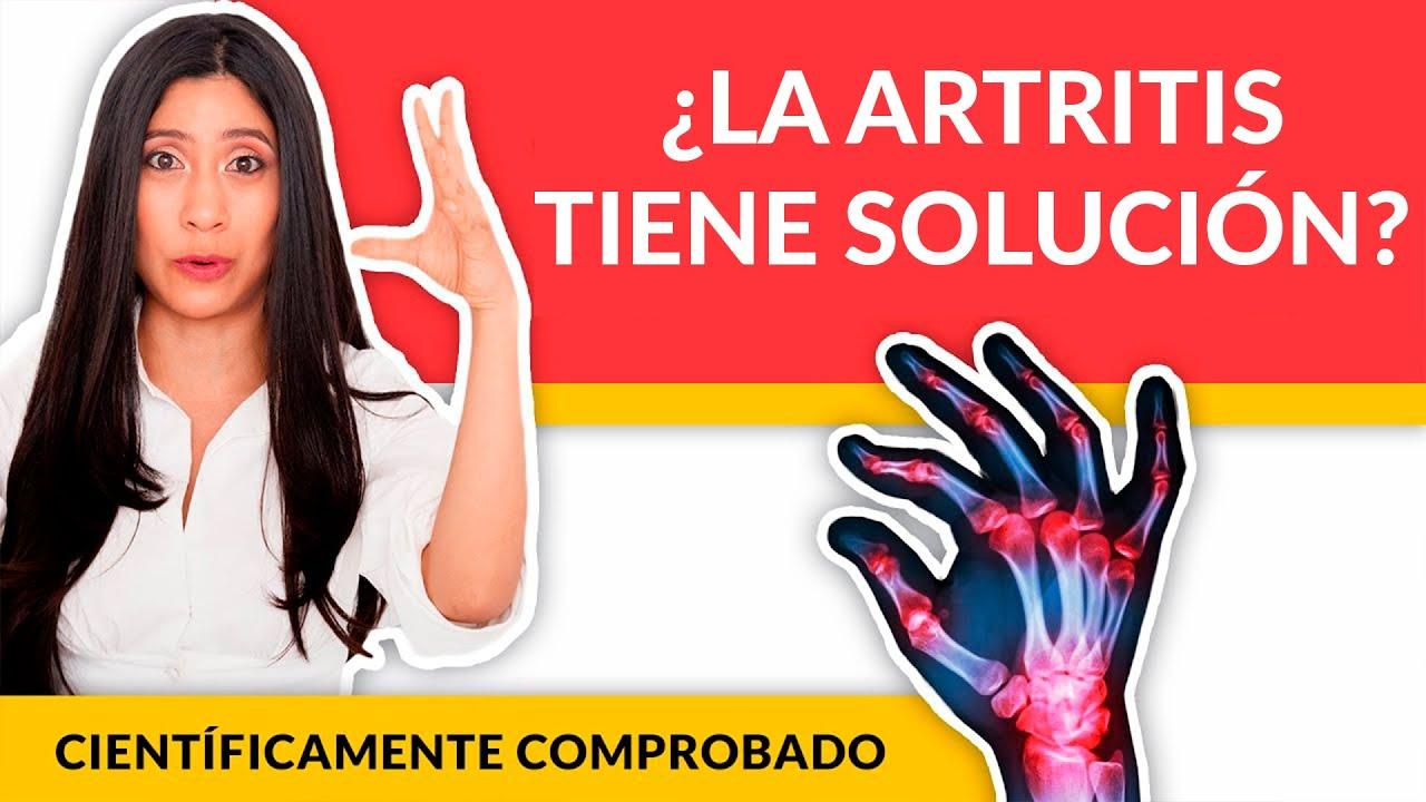 Como curar la Artritis: Tratamiento de Artritis Reumatoide para Remisión