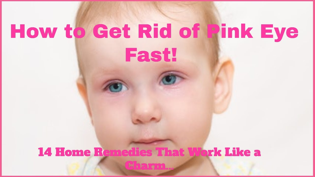 Wow! A Home Remedy for Pink Eye That Works Every Time!