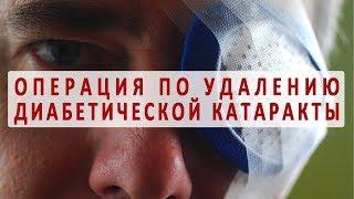 Лечение диабетической катаракты глаз с помощью операции