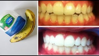 No sticky - Turn Yellow Teeth To Pearl White and Shine, How To Whiten Your Teeth Naturally