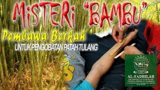 Pengobatan Patah Tulang Al-Fadhilah (Terbaik & Terpercaya Di Jakarta) *Ustadz.Yusuf Menangani pasien.