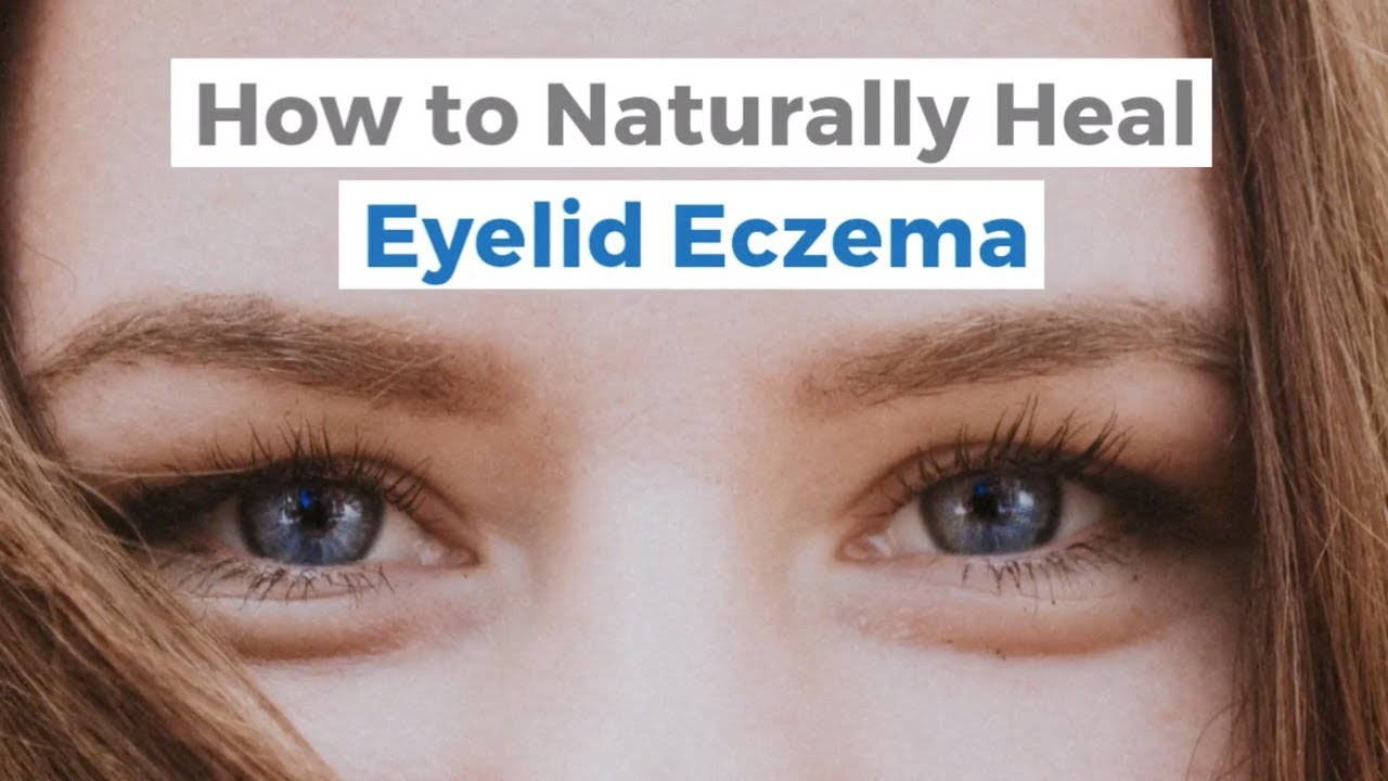 How To Naturally Heal Eyelid Eczema It S An Itchy Little World