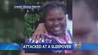 11-Year-Old Seriously Burned When Doused With Boiling Water At Sleepover