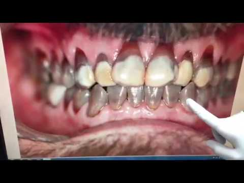 Houston Cosmetic Dentist : My Favorite Snap on Smile case... Simply amazing!