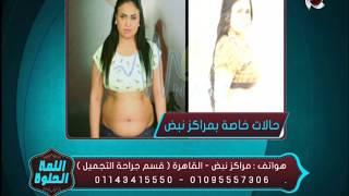 اللمة الحلوة - د/أحمد جلالة أخصائي جراحة التجميل يعرض حالات خاصة تم علاجها بمركز نبض
