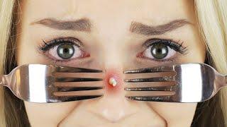 NIE WIEDER PICKEL! 7 HACKS & Lösungen für Hautprobleme | XLAETA