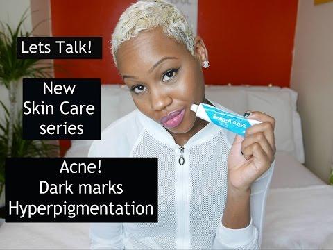 105.Lets Talk! Acne Solutions|Hyper Pigmenatation|Scarring| Retina A| Hydroqinone & Skin Bleaching