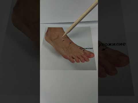 Варикоз нижних конечностей, общие точки стопы.
