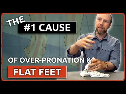 the-#1-cause-of-over-pronation-&-flat-feet