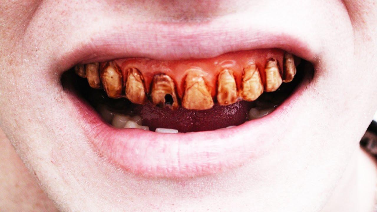 Dientes Torcidos Dentaduras Con Deformidades Severas En Los Dientes